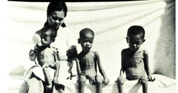 Causes of Malnutrition: identify the major cause of malnutrition (kuposhan)
