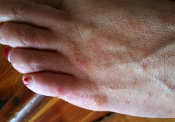 Itchy bumps on feet