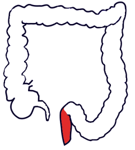 A randomized trial of rectal cancer treatment strategies