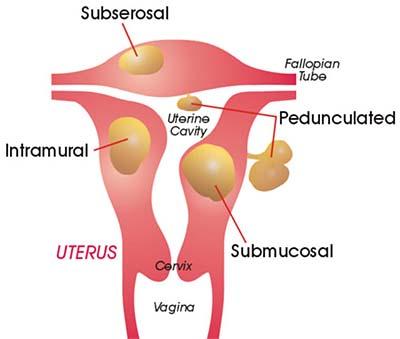 Uterine Fibroid Symptoms and Kinds