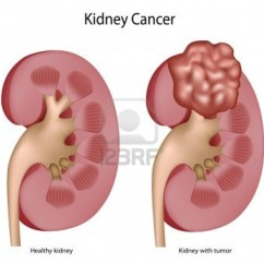 Kidney Location In Humans Diagram Parallel Wiring Subwoofer Pain Get Free Image About