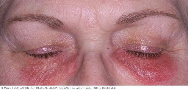 Image showing contact dermatitis on the face latex allergy