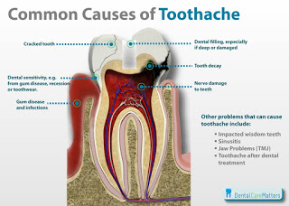 caries, pulpitis are the Common Reasons for Tooth Extraction