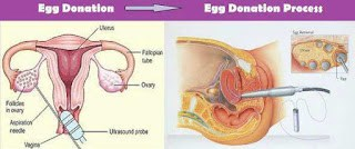 Egg donation overview - learn more
