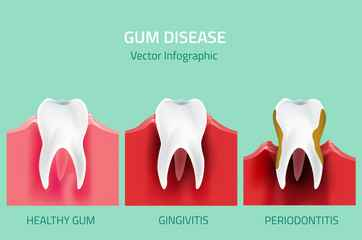11 Steps to get rid of gum disease at home?