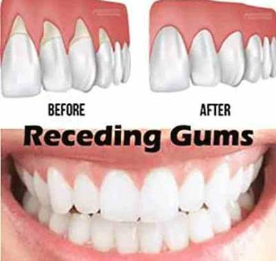 How do you get rid of gum disease at home?