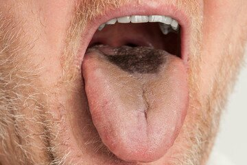 Tongue problems: Home remedies to get rid of Black hairy tongue