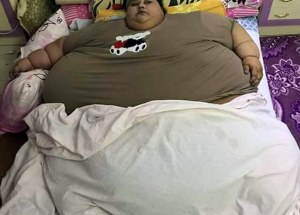 The Fattest Woman in the World Now Weighs Half of What She Did Before