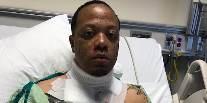 Man Suffers Third Degree Burns From Phone Charger Mishap