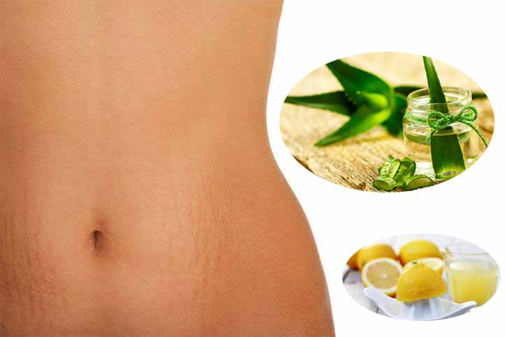 Best Natural Remedies Against Stretch Marks