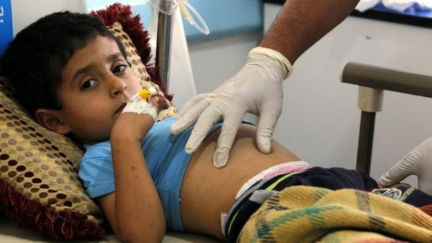 The Cases Of Cholera Have Reached A Record Number In Yemen