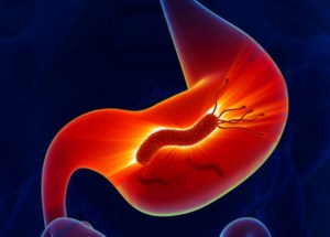 How To Reduce The Risk Of Stomach Cancer