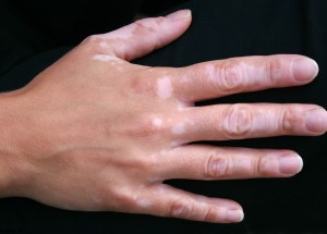 Is There A Correlation Between Vitiligo Repigmentation And Cancer?