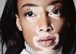 How To Cover Up Vitiligo Spots And Skin Pigmentation Problems