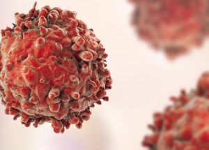 Recurrent Cancer: Why Is It Coming Back After Treatment?