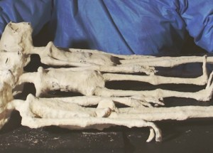 The Nazca Mummies Could Be Extraterrestrials Or Bio Robots, According To A Team Of Researchers