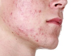 Researchers Found Out That Sugar Is Causing Acne In Teenagers