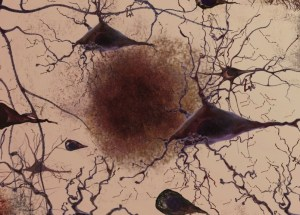 Alzheimer's Plaques Can Be Eliminated From The Brain With Specific Antibodies, A New Study Shows