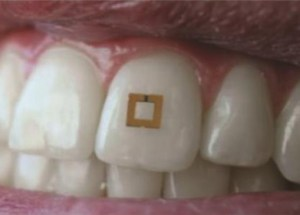 A Wireless Sensor Can Be Attached To One Tooth And Can Track What You Eat