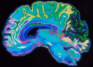 A New Non-Invasive Alzheimer's Disease Diagnosis Has Been Discovered