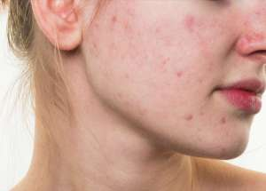 Treatments For Acne Don't Have To Be Complex – Here Are Some Simple-To-Follow Tips And Treatments