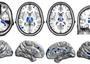 Brain Atrophy to be Avoided by Early HIV Treatment