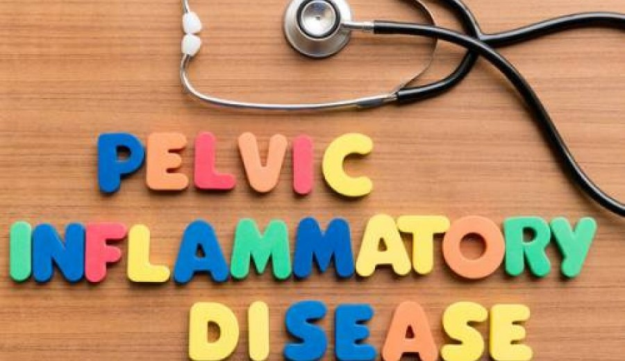MG Infections can Cause Infertility and Pelvic Inflammatory Diseases in Women