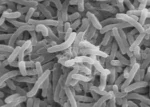 New Study Proves that Bacteria Go Extinct