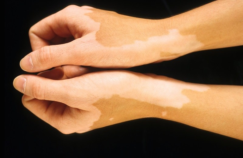 Vitiligo Research With Promising Results In Mice Soon To Start Clinical Trials