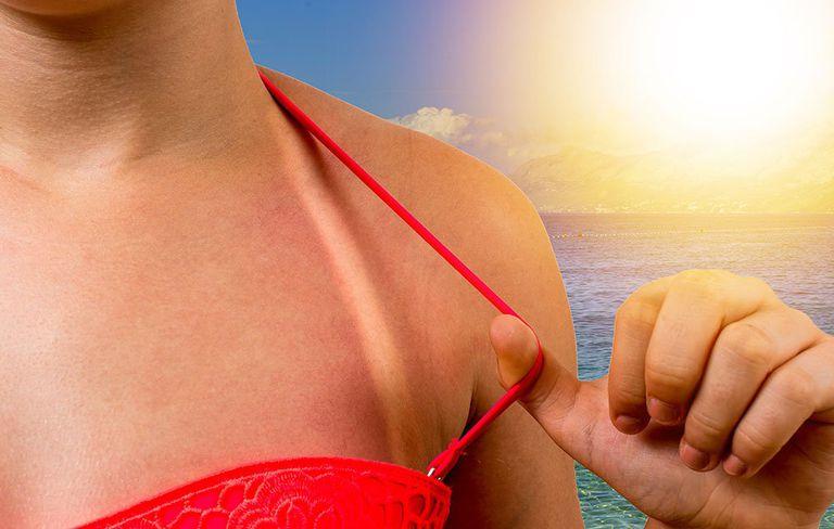 Shaving Foam Is A Surprising Remedy To Relieve Sunburn Symptoms