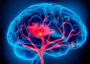 Strokes And Heart Attacks Double The Risks Of Dementia