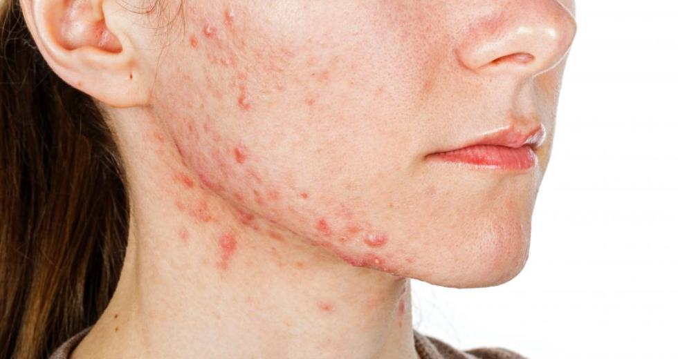 A Working Acne Vaccine Is Finally Possible Against The Most Common P. Acnes Bacteria Strains In Humans