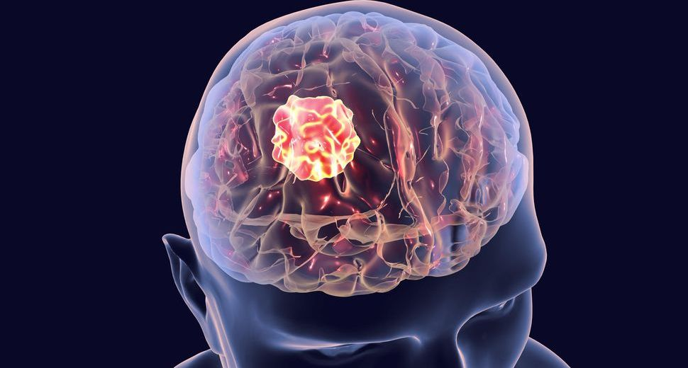 Potential Strategy In Combating Brain Cancer Found By Researchers