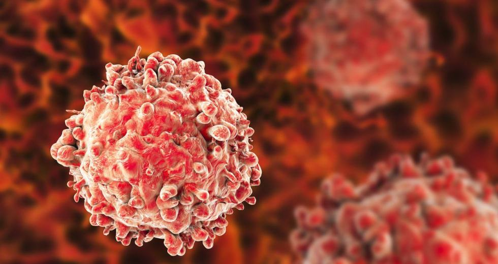 Chemotherapy Is Involved In Acute Myeloid Leukemia Cancer Relapse