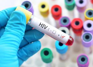 New Immunotherapy Against HIV, Developed By Researchers At The Rockefeller University