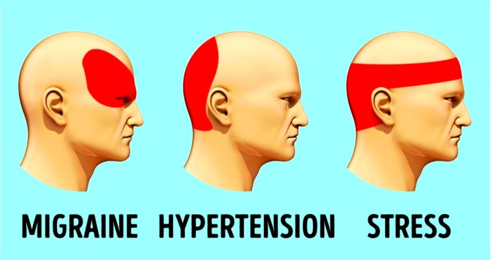 Best Pressure Points To Get Rid of Headaches Immediately