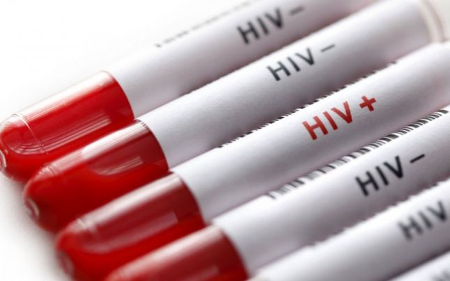 UNAIDS Report Says That 9.4 Million People Are Infected With HIV, But They Don't Know