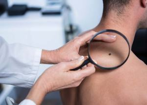 Men are More Prone to Skin Cancer