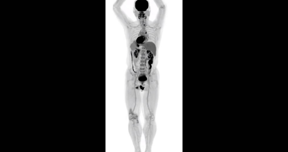 EXPLORER Is The Most Advanced PET Scanner, Being Able To Scan The Entire Human Body At Once