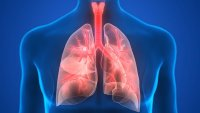 Pneumonia Kills About 1 Million Children Under The Age of 5, Annually