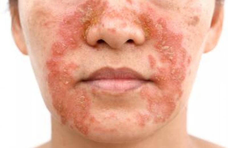 Atopic Dermatitis Linked To Increased Suicidal Behavior
