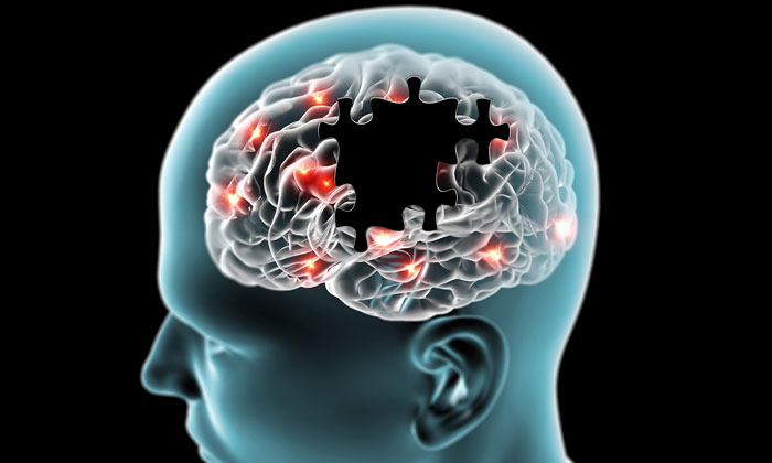 Alzheimer's Disease: Restoring Memory Loss Might Be Possible, Finally