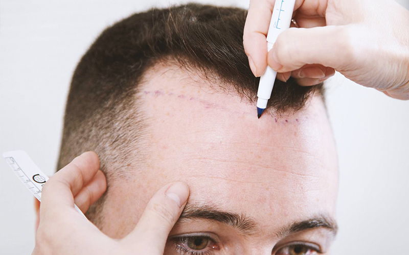 FUE, FUT, and the bewildered hair transplant patient