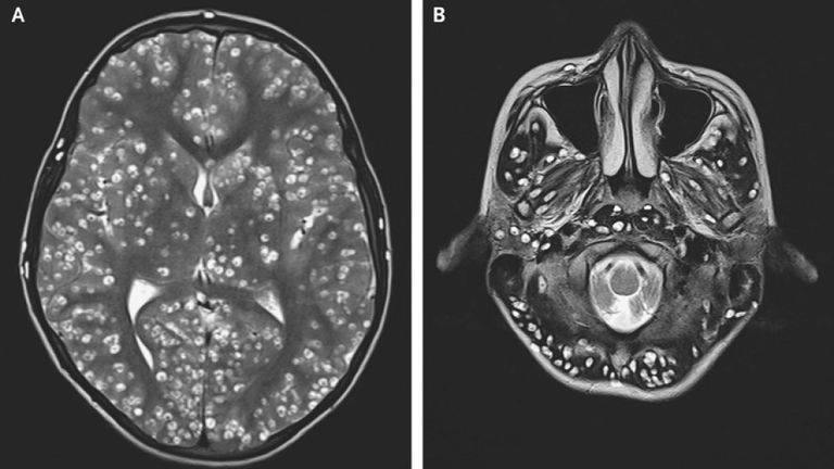 Teen Dead After Tapeworm Larvae Infestation in the Brain