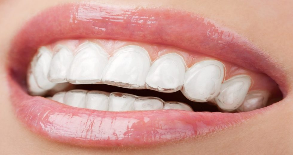 Whitening Strips Could Damage Teeth, New Report Showed