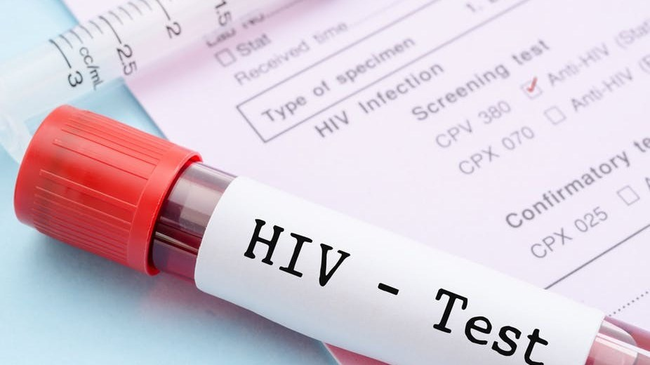 Scientists Discovered A Better Strategy To Fight HIV