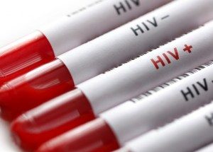 New Studies Are Showing a Method of Preventing HIV Transmission