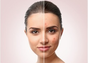 Treat Acne With These Excellent Supplements