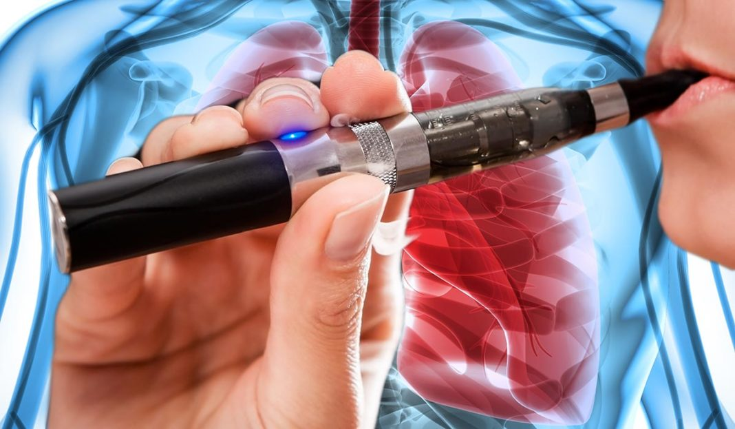 U.S. probes lung illnesses linked to e-cigarette use