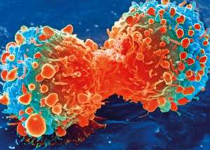 High Stress can Increase Mortality Rates Among Patients Diagnosed with Cervical Cancer